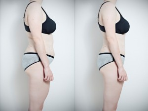 Side view of a woman's torso showing her weight loss