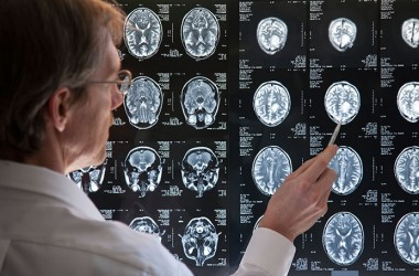 Doctor examines brain to improve memory and fight Alzheimer's disease