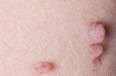 Close up photo of skin tags to identify what kind of beauty mark you have