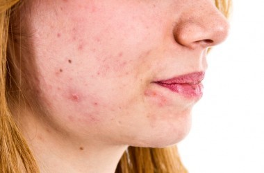 Adult woman with acne on her face