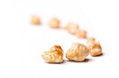 Gallstones removed from a persons gall bladder by surgery