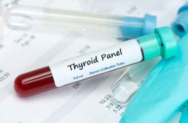 Thyroid hormone test blood sample in collection tube with laboratory report.