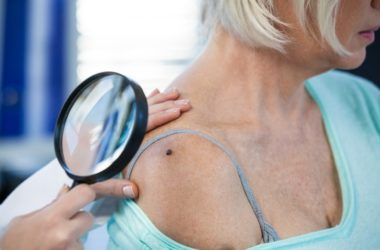 Doctor examines mole of female patient who may have skin cancer, melanoma. or precancerous mole