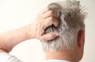 Senior man with dry itchy scalp scratching head