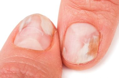 Two fingers with nails that have a fungus or discoloration