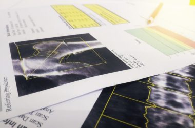 Soft focus image of paperwork on bone mineral density