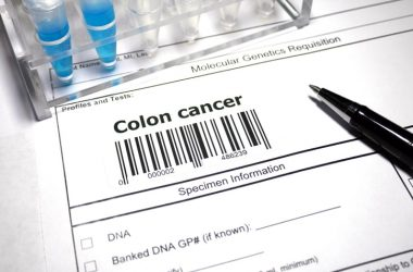 test tubes and paperwork for colon cancer test